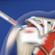 needle in shoulder of skeleton